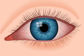 eye_LND_New_SLOs